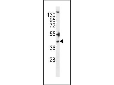 ZDHHC20 Antibody