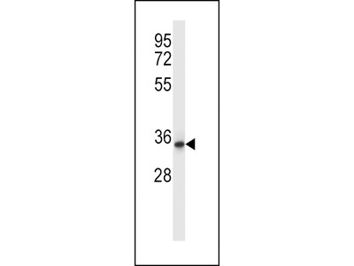 QPRT Antibody