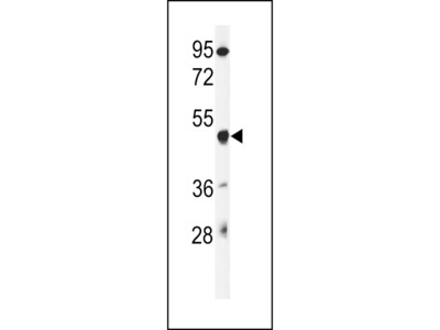GSDMA Antibody