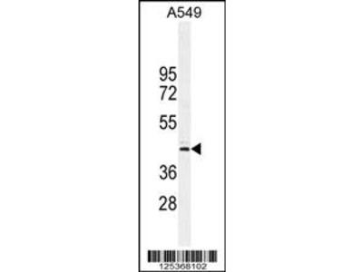 CT112 Antibody
