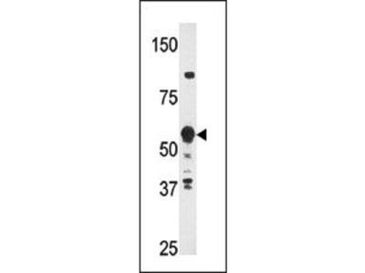 HDBP2 Antibody