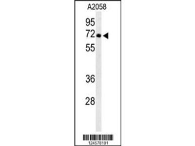 ATP6V1A Antibody
