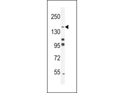 His6-DEP-1 Antibody