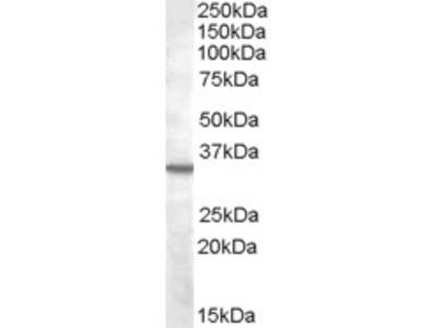 Goat anti-Bradykinin receptor B1 Antibody