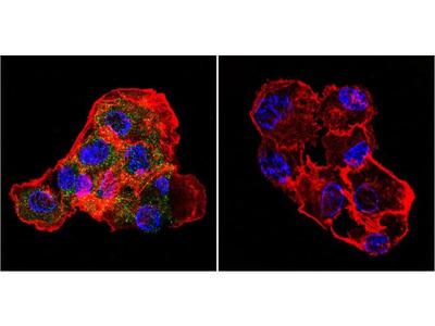 CETP Monoclonal Antibody (ATM192)
