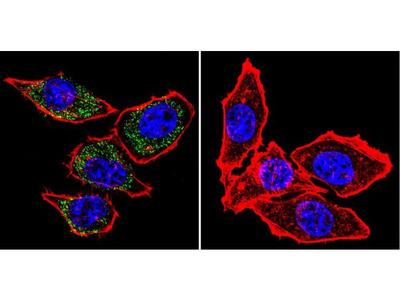 PMCA ATPase Monoclonal Antibody (5F10)