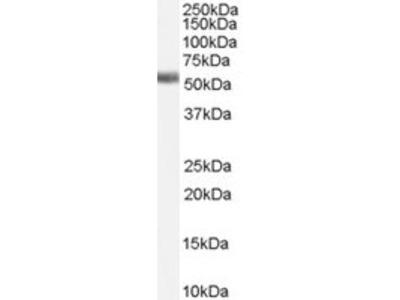 Goat anti-Farnesoid X receptor / FXR Antibody