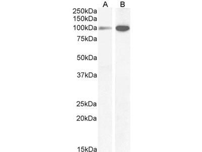 Goat anti-NMDA receptor 1 / GRIN1 Antibody