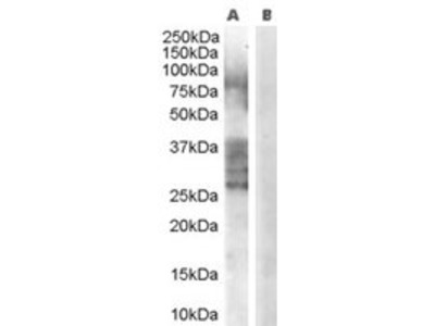 Goat anti-ADAM33 Antibody