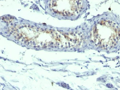 PRLR antibody