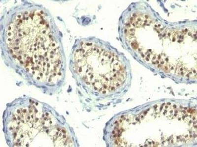 Thymidylate Synthase Cocktail antibody