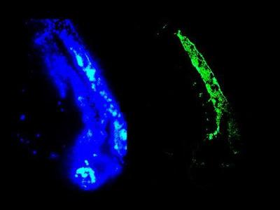 Vimentin Monoclonal Antibody (RV202)