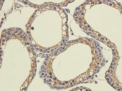 CD333 antibody