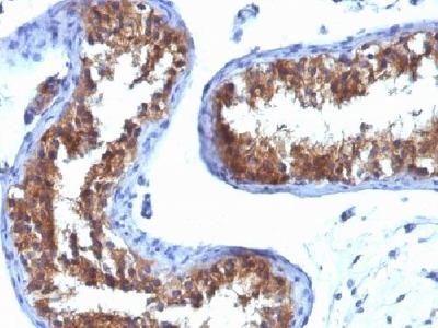 MVP antibody