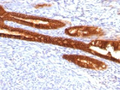 KRT7 antibody