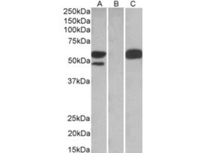 Goat anti-SSA1 / Ro52 Antibody