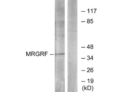 Anti-MRGRF Antibody