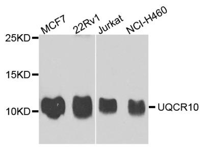 Anti-Tropomodulin-3 TMOD3 Antibody