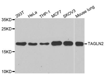 Anti-TAF1C Antibody
