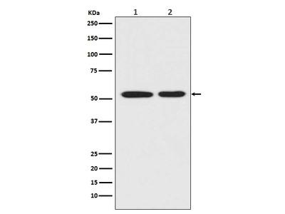 Anti-Mutant p53 Rabbit Monoclonal Antibody