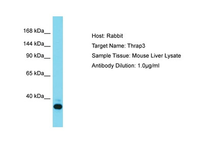 Anti-TR150 THRAP3 Antibody