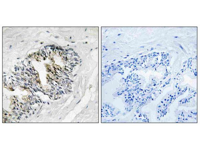 Anti-RPLP2/Ribosomal Protein Lp2 Antibody