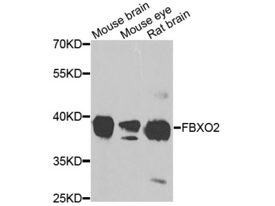 Anti-Cholesterol 24-hydroxylase CYP46A1 Antibody
