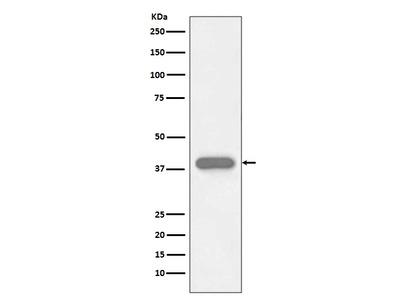 Anti-Troponin T Rabbit Monoclonal Antibody