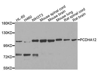 Anti-SMEK1 PPP4R3A Antibody