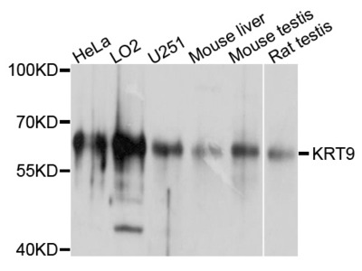 Anti-Cytokeratin-9 KRT9 Antibody