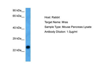 Anti-MRAS/R Ras3 Antibody