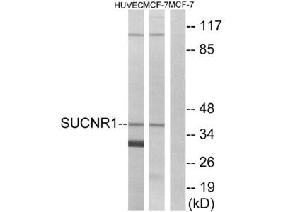 Anti-SUCNR1/Gpr91 Antibody