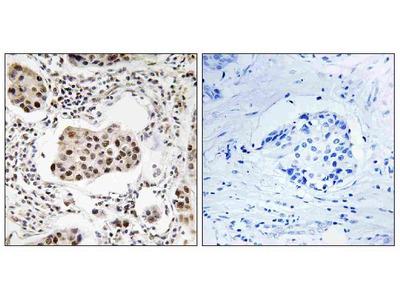 Anti-PPP1R11/Tctex5 Antibody