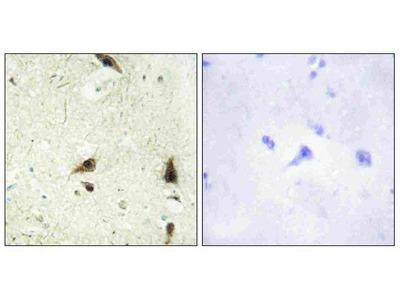 Anti-CHRC1 CHRAC1 Antibody