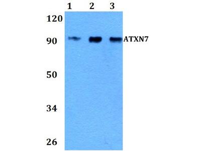 Anti-Ataxin-7 ATXN7 Antibody