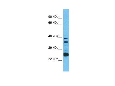 Anti-O2A12 OR2A12 Antibody
