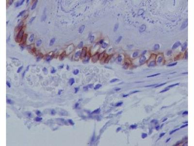 Anti-Collagen XVII Rabbit Monoclonal Antibody