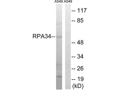 Anti-CD3EAP/Paf49 Antibody