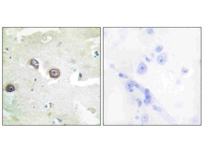 Anti-CDH4/R Cadherin Antibody