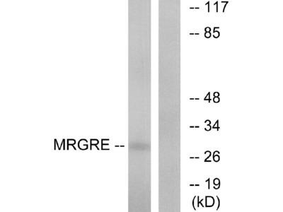 Anti-MRGRE Antibody