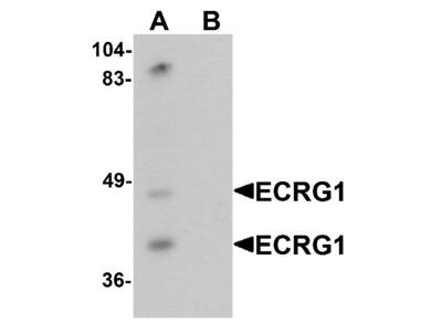 Anti-ECRG1 TMPRSS11A Antibody