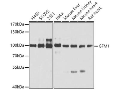 Anti-CBR4 Antibody