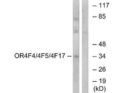 Anti-OR4F4/4F5/4F17 Antibody