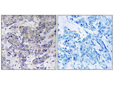 Anti-RPS21/Ribosomal Protein S21 Antibody