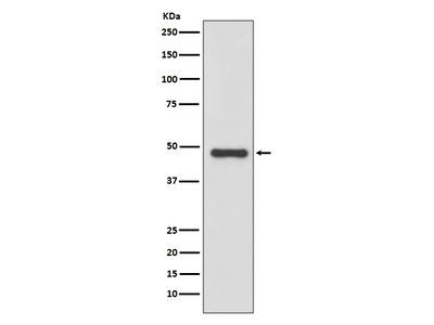Anti-Urokinase Rabbit Monoclonal Antibody