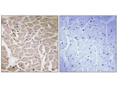 Anti-Collagen XVI alpha1 Antibody