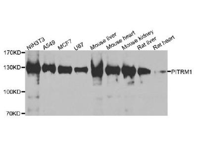 Anti-PPP4R1 Antibody