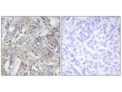 Anti-Collagen VI alpha3 COL6A3 Antibody