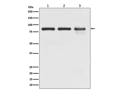 Anti-Catenin gamma JUP Rabbit Monoclonal Antibody