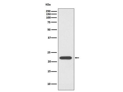 Anti-PRDX1/Peroxiredoxin 1 Rabbit Monoclonal Antibody